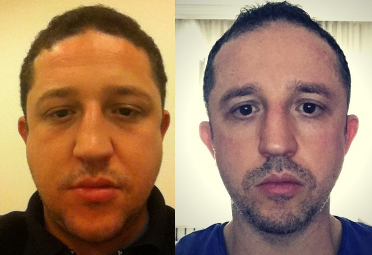 fat-face-chiseled-face-before-after